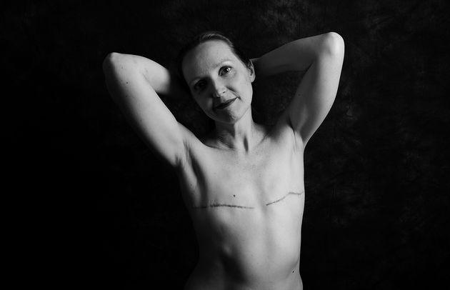 Angela Crossland, 46, de Buckinghamshire, foi diagnosticada com câncer de mama em