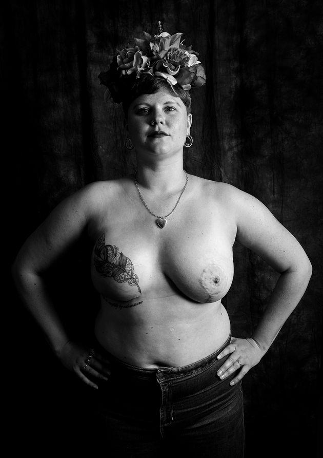 Alice-May Purkiss, 30, de Londres, foi diagnosticada com câncer de mama estágio 3, em