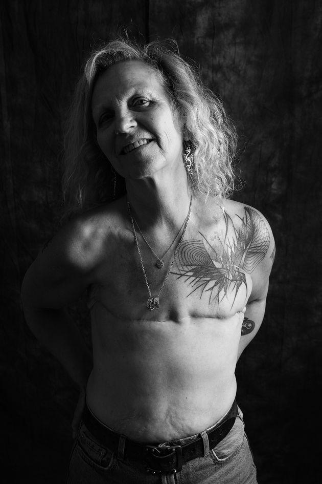 Caroline Caffrey, 58, de Brighton, foi diagnosticada com câncer de mama em