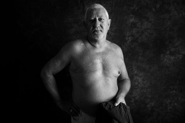 Steve McAllister, 67, de Cardiff, foi diagnosticado com câncer de mama em