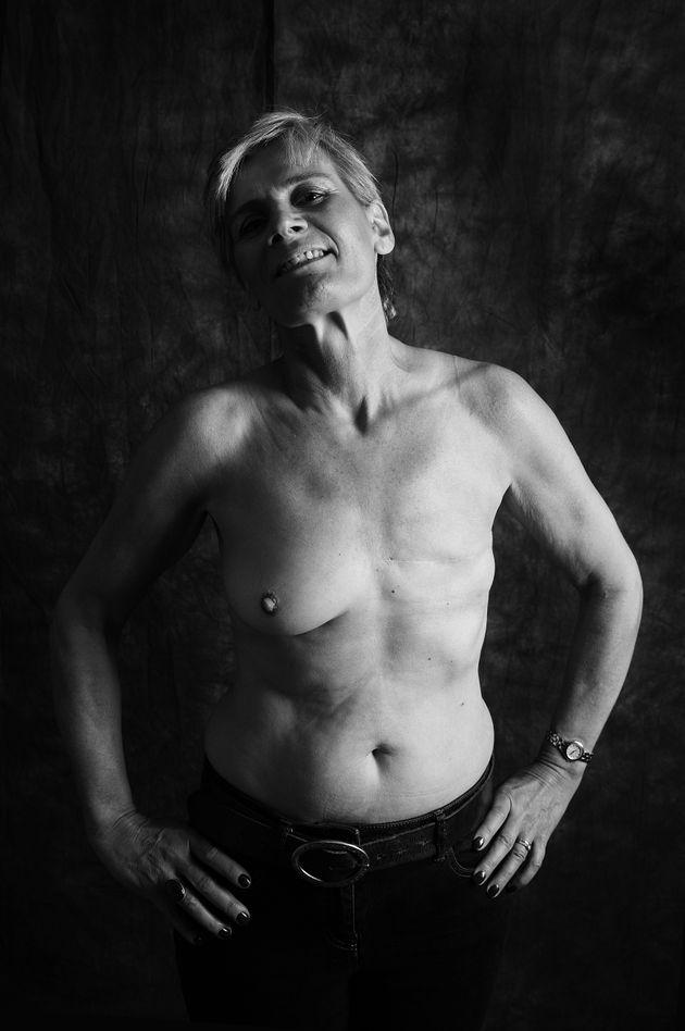 Stella Bradley, 53, de Shropshire, foi diagnosticada com câncer de mama em