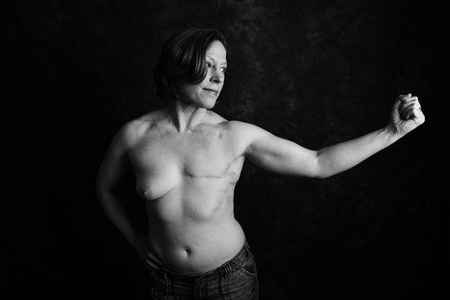 Thomasina McGuigan, 45, de Portsmouth, foi diagnosticada com câncer de mama aos 20