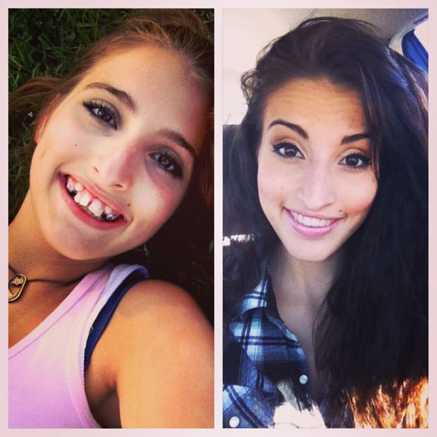 Girl's Incredible Before-And-After Tranformation After Jaw Surgery