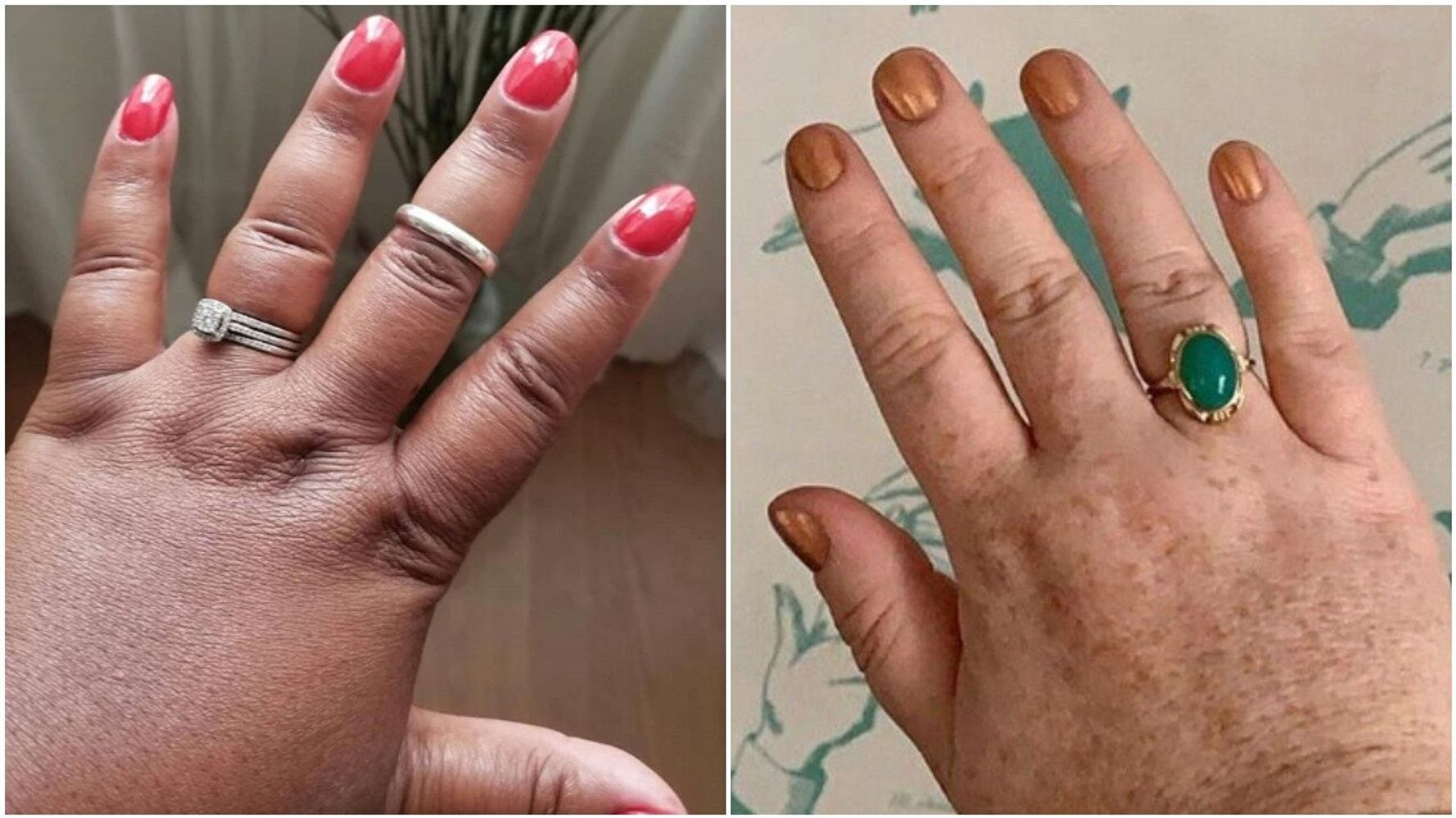 You Never See Chubby Fingers Selling Rings – This Campaign Hopes To Change That