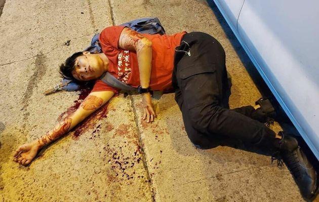 Leader delle proteste di Hong Kong aggredito a