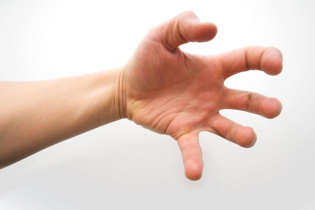 Επτά παράξενα σύνδρομα που έχουν παρατηρηθεί στο ανθρώπινο