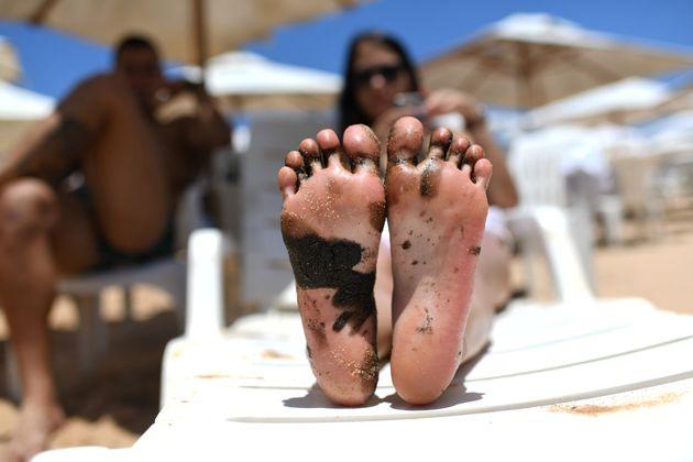 Na praia de Imbassi, na Bahia, mulher mostra pé manchado de