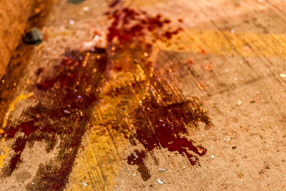 Βασανιστήρια, σεξουαλική βία, ξυλοδαρμοί και σοβαροί τραυματισμοί από σκάγια - Η καταστολή στη