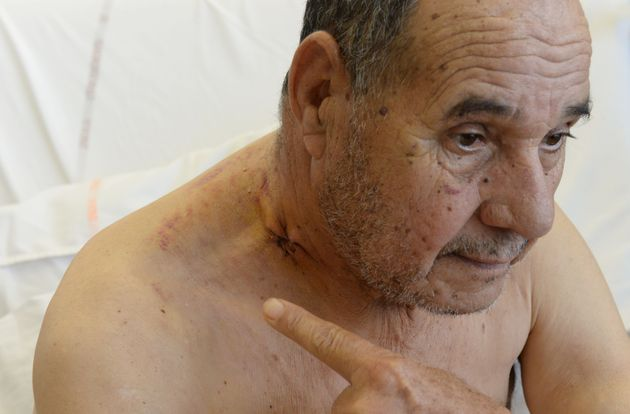 Amar Kariouh, 78, on Wednesday showed the bullet hole to his neck as he recuperates at a hospital in...