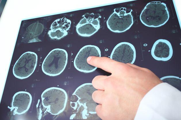 Un algoritmo recomienda el mejor tratamiento para la esclerosis