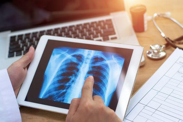Le cancer du poumon progresse chez les