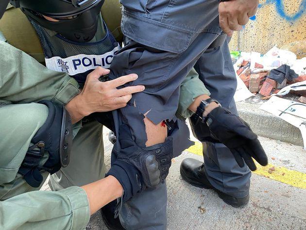 Un policier touché par une flèche à