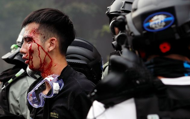 Police detain protesters who attempt to leave the campus of Hong Kong Polytechnic University (PolyU)...