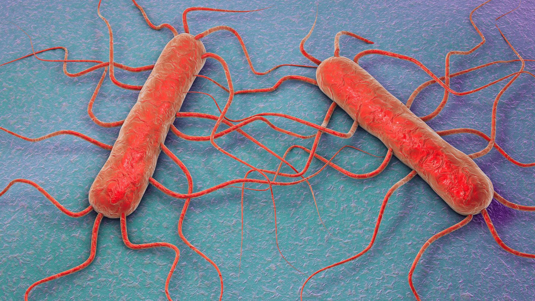 Listeria Symptoms: What You Should Know About The Foodborne Pathogen