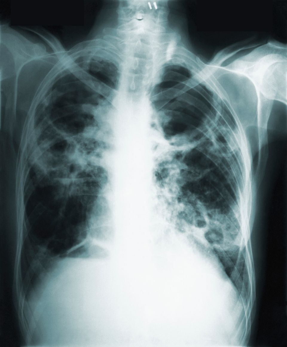 This 1966 image made available by the Centers of Disease Control and Prevention shows a chest x-ray of...