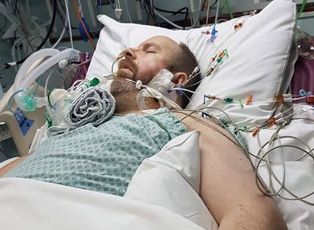 Asthma And Flu Can Be Lethal Combination As This Man Discovered