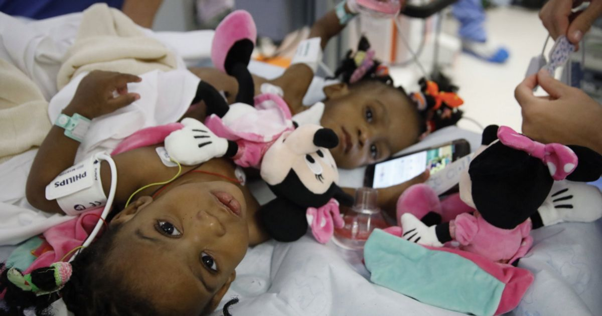 Les petites siamoises, devenues jumelles, dans l'attente d'un retour au Cameroun