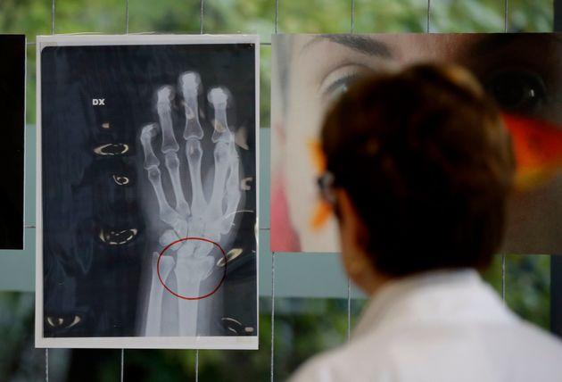 A doctor looks at an x-ray of a woman's broken wrist displayed during the exhibition 'Invisibility is...
