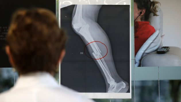 A doctor looks at an x-ray of a woman's broken leg displayed during the exhibition 'Invisibility is not...