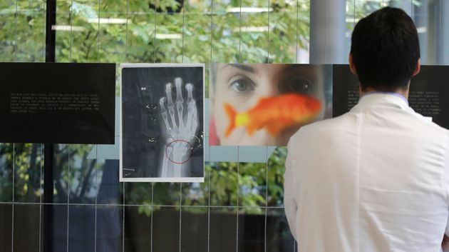 A doctor looks at a a photograph and an x-ray of a woman's broken wrist displayed during the exhibition...
