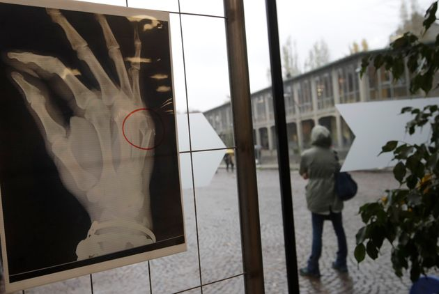 An x-ray of a woman's broken hand bone is displayed during the exhibition 'Invisibility is not a super...