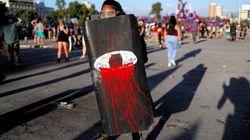 ゴム弾で220人が失明、南米チリ 治安部隊がデモ参加者を撃ち