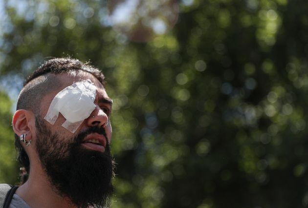 Γιατί το μεγαλύτερο σύμβολο αντίστασης στη Χιλή είναι πλέον τα μάτια των