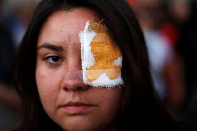 A protester wears an eyepatch in support of Gustavo Gatica in his hometown La Colina, Chile November 10, 2019, after Gatica was hit by pellets in his eyes on Friday during a protest against Chile's government in Santiago. REUTERS/Jorge Silva     TPX IMAGES OF THE DAY