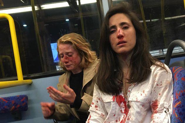 Melania e Chris foram atacadas por um grupo de homensem um ônibus na área central...