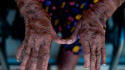 «Το δέρμα μου είναι πολύ στενό για το σώμα μου» - Η ζωή με μια σπάνια δερματική