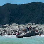 Νέα Ζηλανδία: 120 τ. μ. δέρματος χρειάζονται οι εγκαυματίες του