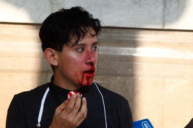 Un joven que ha resultado agredido por integrantes de la