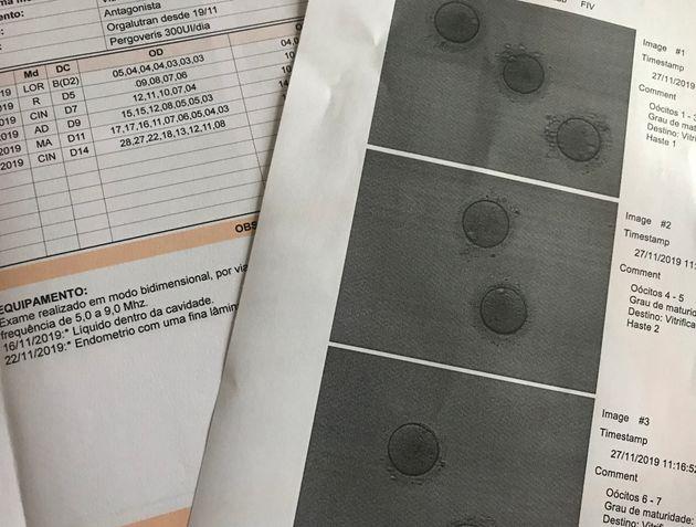 Após testes, injeções e consultas, apenas 7 óvulos de Isabela foram congelados...