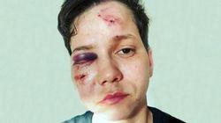 Por que a polícia do Rio descartou que a youtuber Karol Eller foi vítima de crime
