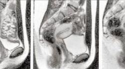 섹스하는 모습을 MRI로 촬영해 보았다. 20년