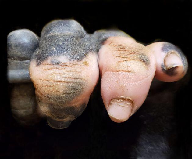 Ο γορίλας με τα ανθρώπινα δάχτυλα που έγινε