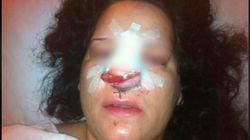 Naciones Unidas condena a España por tratos crueles durante una detención en