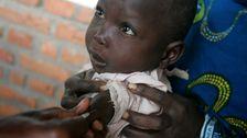 6,000死者からの麻疹流行がコンゴ民主共和国者報告書