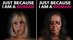 Les visages tuméfiés de Brigitte Macron et Michelle Obama s'affichent à