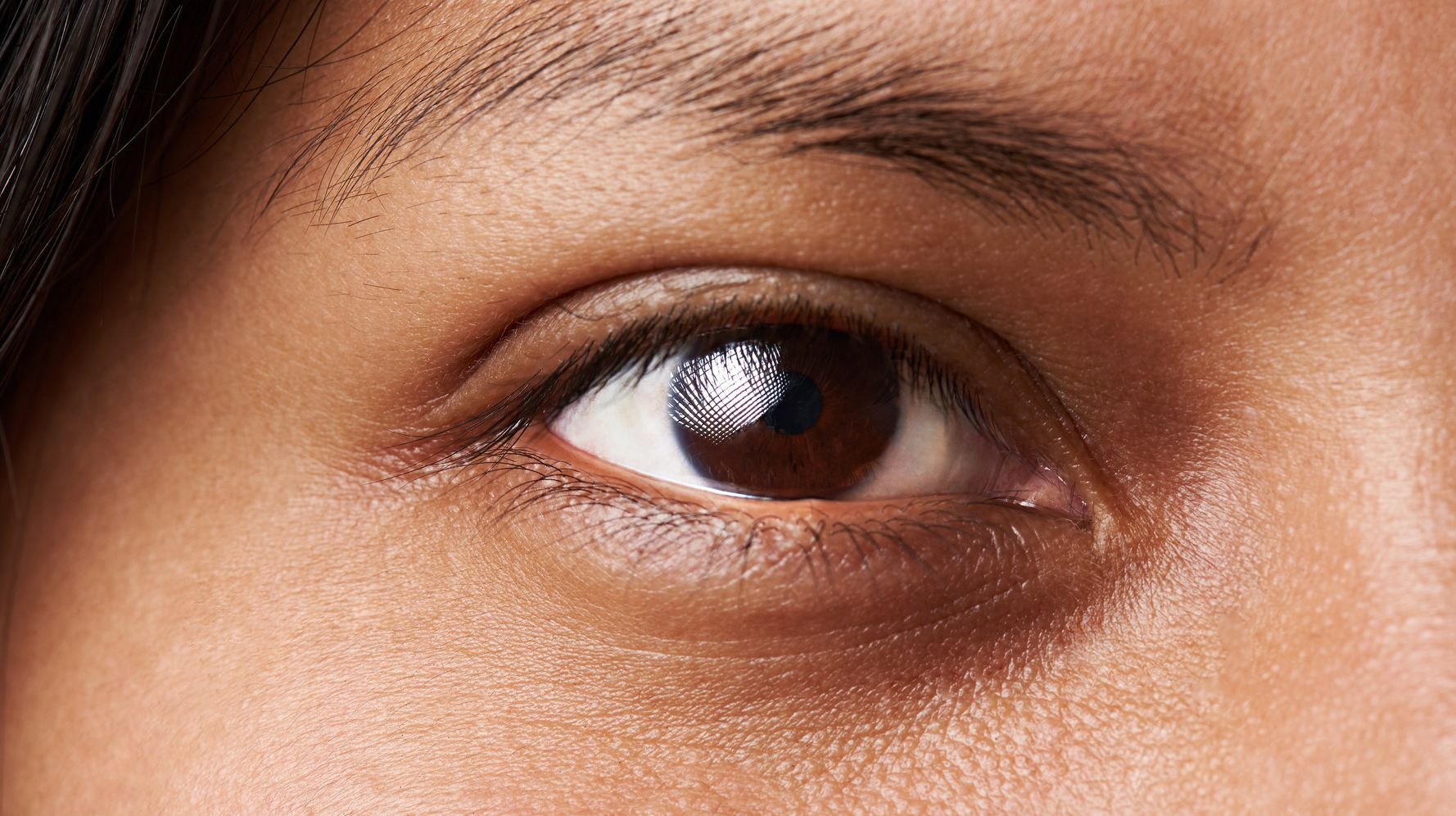 What Causes Dark Circles Under Your Eyes And How Do You Get Rid Of Them?