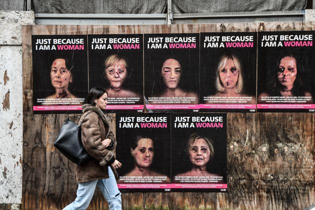 미셸 오바마의 얼굴에 멍이 들고 상처가 가득하다 (사진)