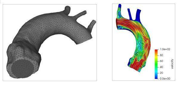 Figura 1. Sinistra: rappresentazione geometrica dell'arco aortico. Si notino i 3 seni di Valsalva....