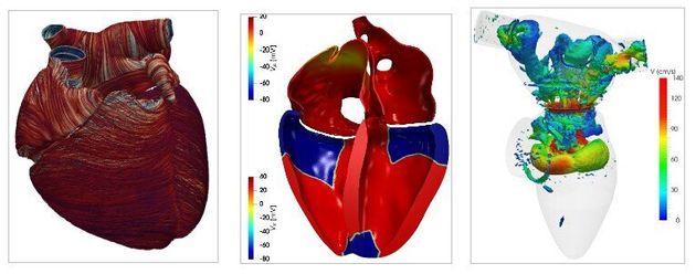 Figura 2. Ricostruzione delle fibre cardiache (sinistra), propagazione del campo elettrico (centro),...