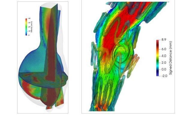 Figura 4. Campo di velocità del sangue in un aneurisma addominale prima (sinistra) e dopo (destra) l'inserimento...