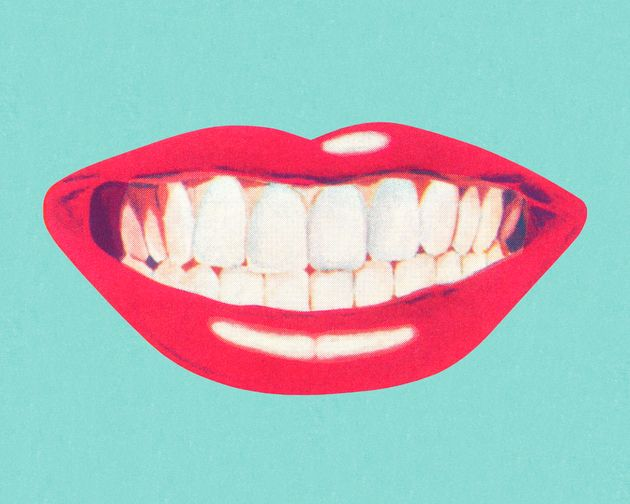 Thinking About Getting Veneers? Heres What You Need To Know