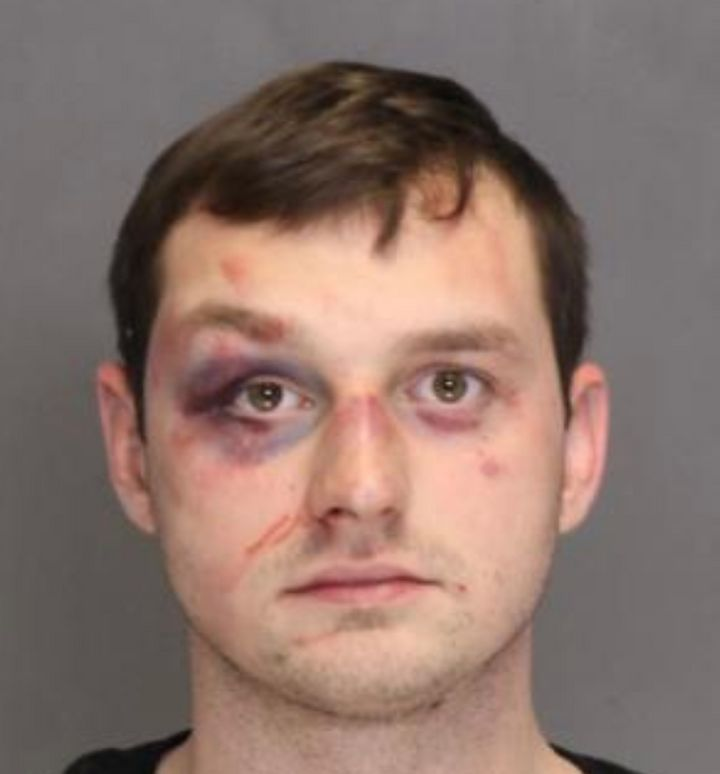 """Brandon Higgs got beat up """"pretty good"""" after allegedly shooting Elvis Smith, a prosecutor told jurorsat the Circuit Co"""
