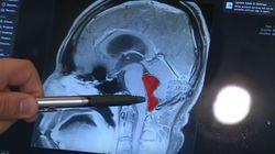 Τέξας: Ζούσε με σκουλήκι στον εγκέφαλό του για 10