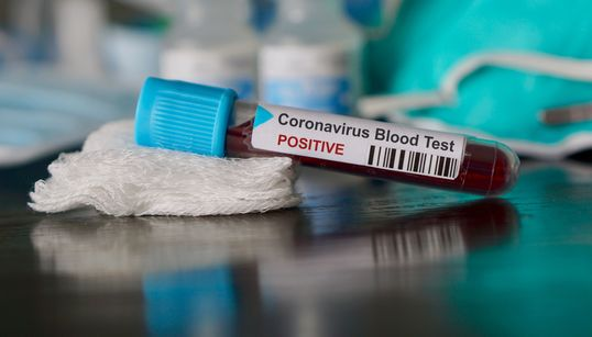 Where Has Coronavirus Been Confirmed In