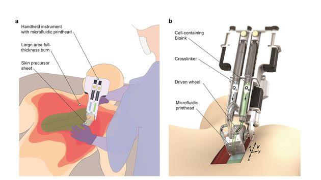 Illustration schématique du fonctionnement de l'appareil 3D lors de son application sur une