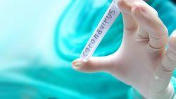 Coronavírus e Carnaval? Governo recomenda 'etiqueta respiratória' contra